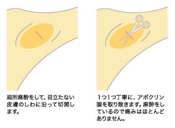 保険適用可能な煎除法(せんじょほう)