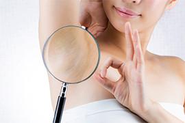 ホルモンバランスと未成年の脱毛の関係