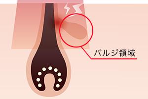 蓄熱式は、バルジ領域をターゲットにするから痛みや刺激を抑えられる