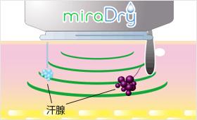 ミラドライのマイクロ波照射を開始