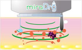 ミラドライによって汗腺を破壊するイメージ