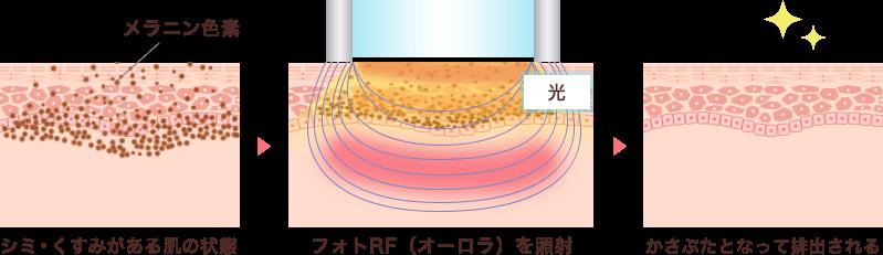 フォトRFは光エネルギーがメラニンを破壊