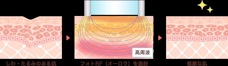フォトRFは高周波がコラーゲン生成を促進