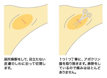 新宿マリアクリニックのわきが・多汗症治療①剪除法(保険適用可)